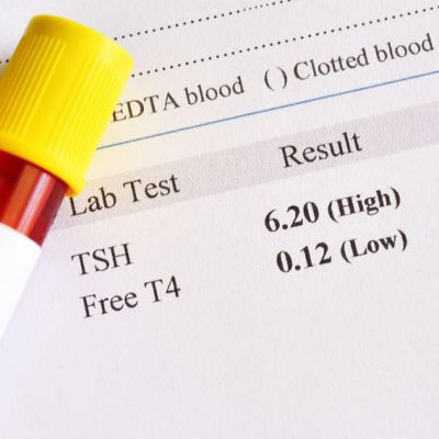 FT4 - badanie laboratoryjne