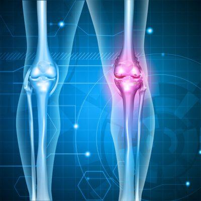 USG dwóch kolan (stawów kolanowych)