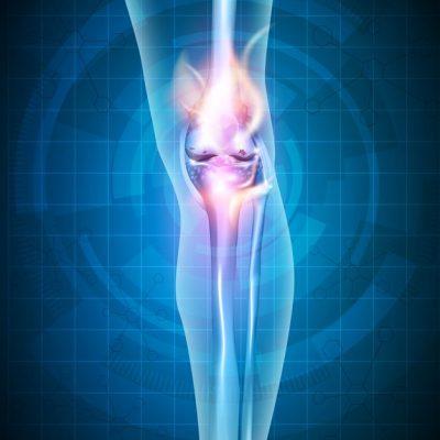 USG jednego kolana (stawu kolanowego)